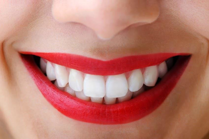 Benefits of Hollywood Smile